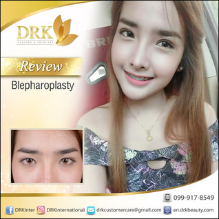 Natural DOLLY EYES Double Eyelid Surgery by Dr. Korn
