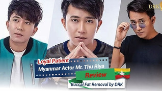 Myanmar actor for VSHAPE face at DRK