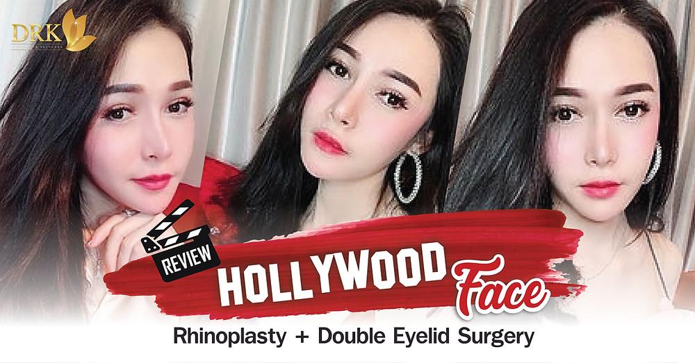 Rhinoplasty Double Eyelid
