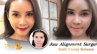 When Beauty meets Needs. Jaw Alignment Surgery and Cheek Augmentation