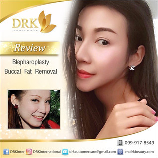 Double eyelid surgery and Buccal Fat Removal with Dr. Kolawach