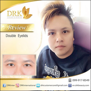 Natural Adhesive Double Eyelid Surgery with Dr. Korn
