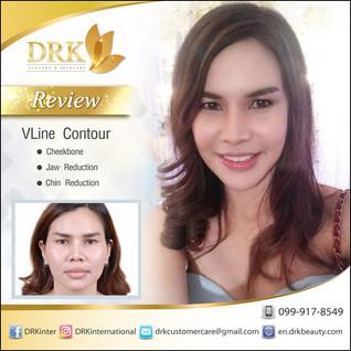 V-Line Contour Feminization Facial Bone Surgery