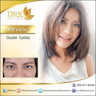 Thailand Model Mudzii had a Natural Crease Double Eyelid Surgery by Dr. Korn