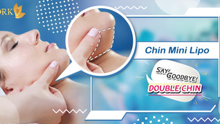 Chin Liposuction, get rid of a double chin and enhance overall facial appearance.