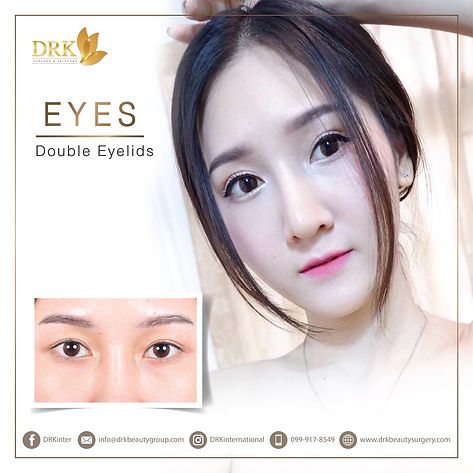 Lovely Korean Eyes through Double Eyelid Surgery