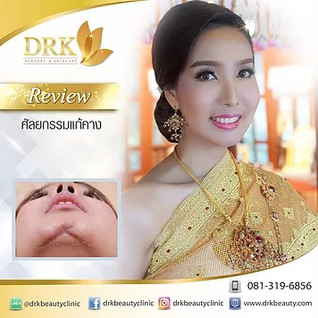 Reconstructive Chin augmentation with Dr. Kolawach