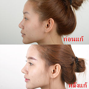 Revision Rhinoplasty Nose