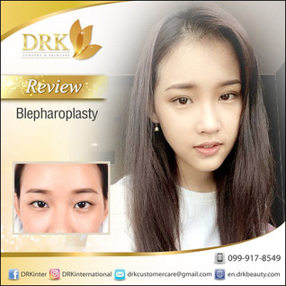 Asian Double Eyelid Surgery by Dr. Korn