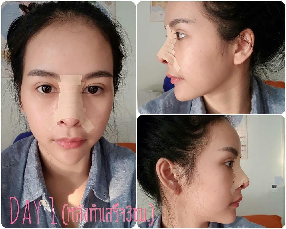rhinoplasty thailand