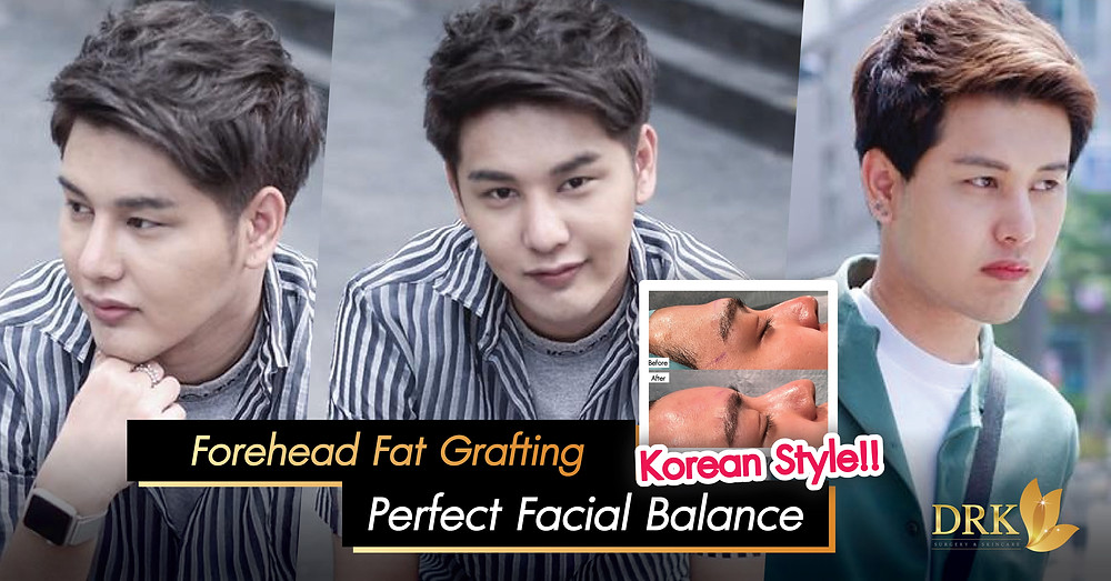 Forehead Augmentation Fat Graft