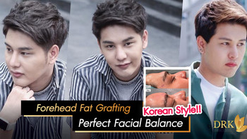 Forehead augmentation fat filler with stem cell enriched technique to achieve facial balance for Men