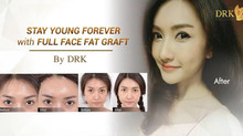 Fuller Fat grafting Heart Shape Fat Graft by DRK creates a sexier and more balance face contour for