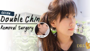 No more fatty under chin with Double Chin Removal by DRK