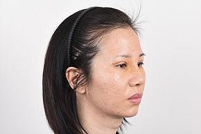 Double Eyelid & Rhinoplasty