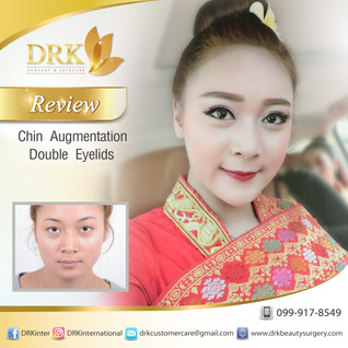 Beautiful Asian look with Defined eyes and Vshape face through double eyelid and chin augmentation s
