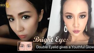 Beautiful Youthful Eyes through Double Eyelid surgery