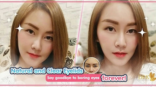 From Boring eyes to GLOWING EYES through Double Eyelid Surgery