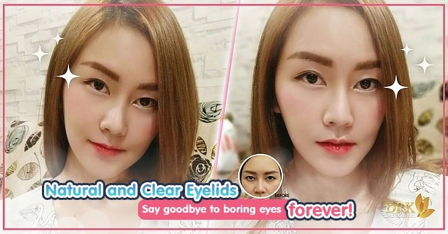 From Boring eyes to GLOWING EYES through Double Eyelid