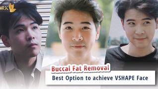 Enhanced jawline and slender face through Buccal Fat Removal