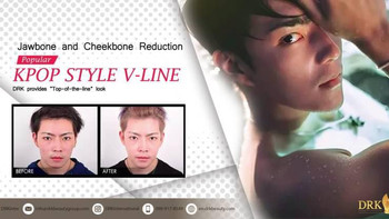 VLINE Contour Korean Style Facial Structure by DRK