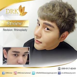 Revision Rhinoplasty for Male Nose Line