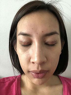 Double Eyelid surgery