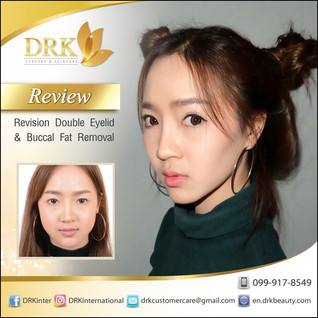 Beauty Combo for Natural Korean Style: Double Eyelid and Vshape Buccal Fat Removal by Dr. Kolawach