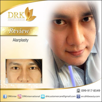Nose wing reduction by Dr. Kolawach