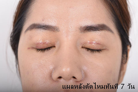 Naturally beautiful eyes give me confidence! Double Eyelid surgery