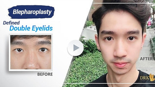 1 week recovery with Men Double Eyelid for Handsome look