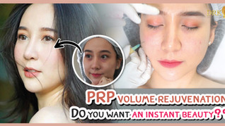 PRP Volume Lift for Facial Rejuvenation