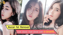 Slim cheek by Buccal Fat removal surgery with Dr. Kolawach at DRK.