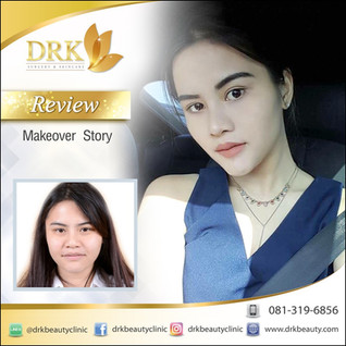 Face Makeover Stunning Transformation by DRK