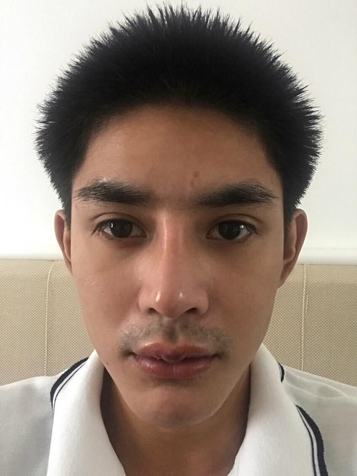 lip reshape