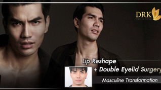 Changed the look to manhood through Lips Reshape and Double Eyelid surgery!