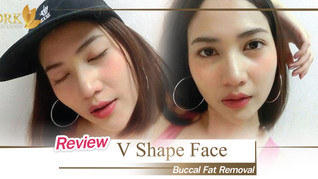 Sexy Cheeks Korean Vshape by Buccal Fat removal with the expert!
