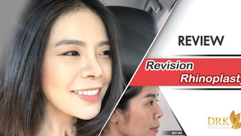 Revision Rhinoplasty at DRK saved my face!