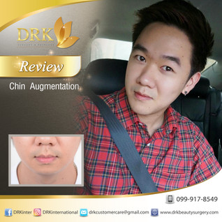 Prominent Chin for Men by Dr. Aui