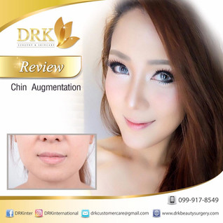 VSHAPE face through Chin Augmentation with Titanium Screw Technique