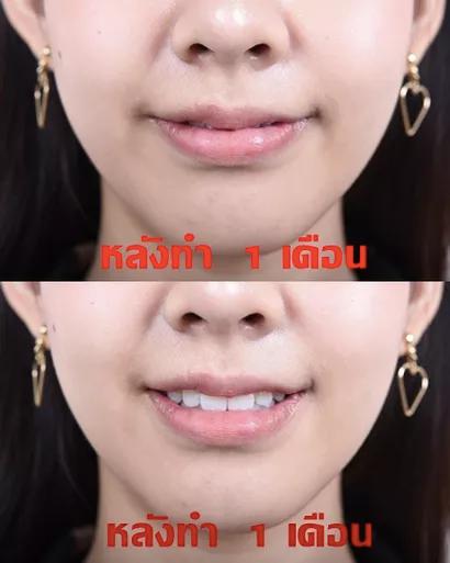 lip surgery