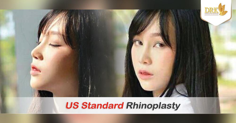 Rhinoplasty US Standard