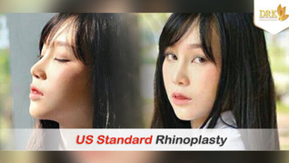What is the right process for Rhinoplasty procedure from DAY 1 to RESULT! See my incredible experien