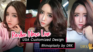 Revision Rhinoplasty for more perfect defined Nose Line