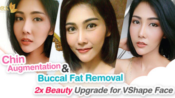 2x more beautiful, 2 procedures in one-time can give you the Korean VShape Face!