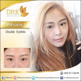 Fresh Look Double Eyelid surgery by Dr. Korn
