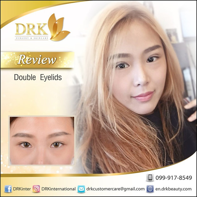 Fresh Look Double Eyelid surgery by Dr  Korn