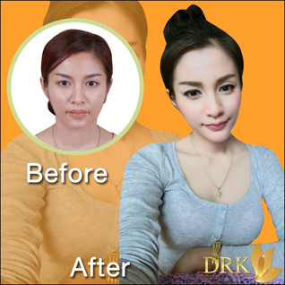 Chin Augmentation and Lip Reshape surgery Review
