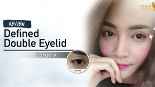 Clear and defined double eyelids that gives a natural glow!