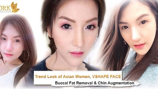 VSHAPE face through Buccal Fat Removal and Chin Augmentation Surgery by DRK